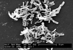 Hilfe bei Autismus – Die Rolle der Bakterien