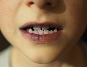 Zähne putzen mit Kind: Zahnfärbetabletten