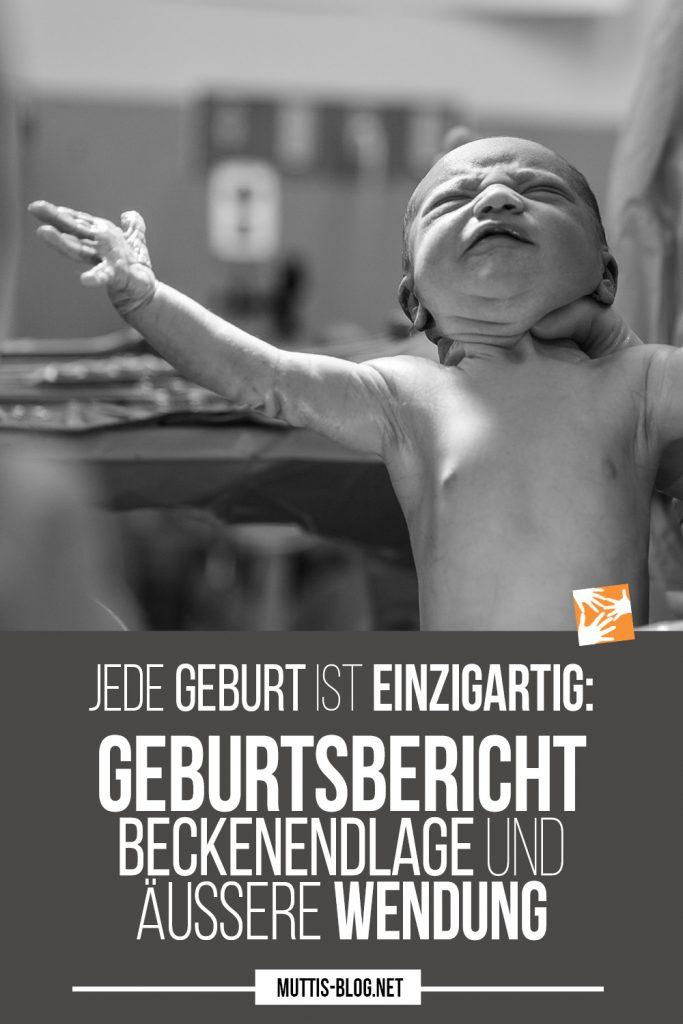 Jede Geburt ist einzigartig: Geburtsbericht Beckenendlage und äußere Wendung